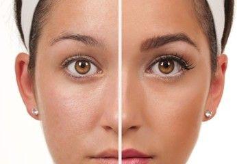 Permanent Makeup Procedure Doctor Covici Springfield Ma
