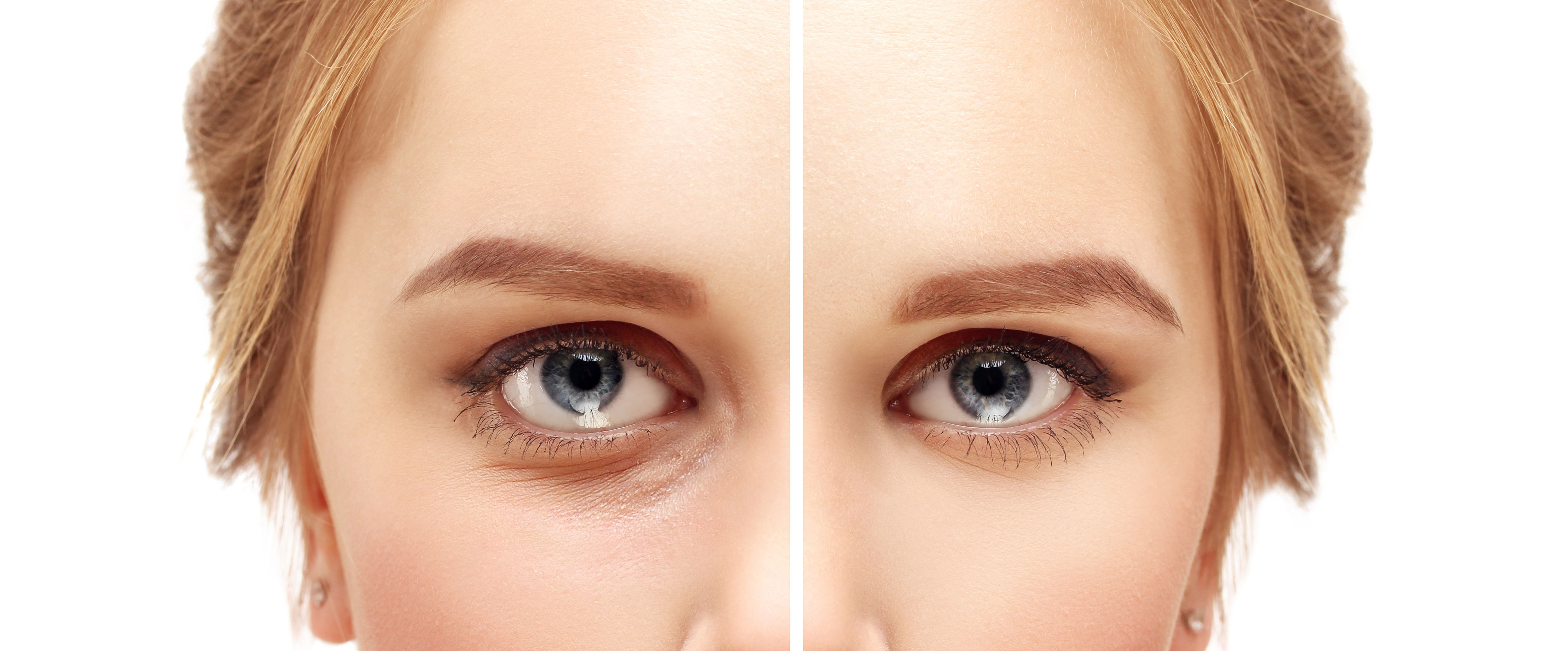 Before and After Blepharoplasty Lower Eyelid Surgery