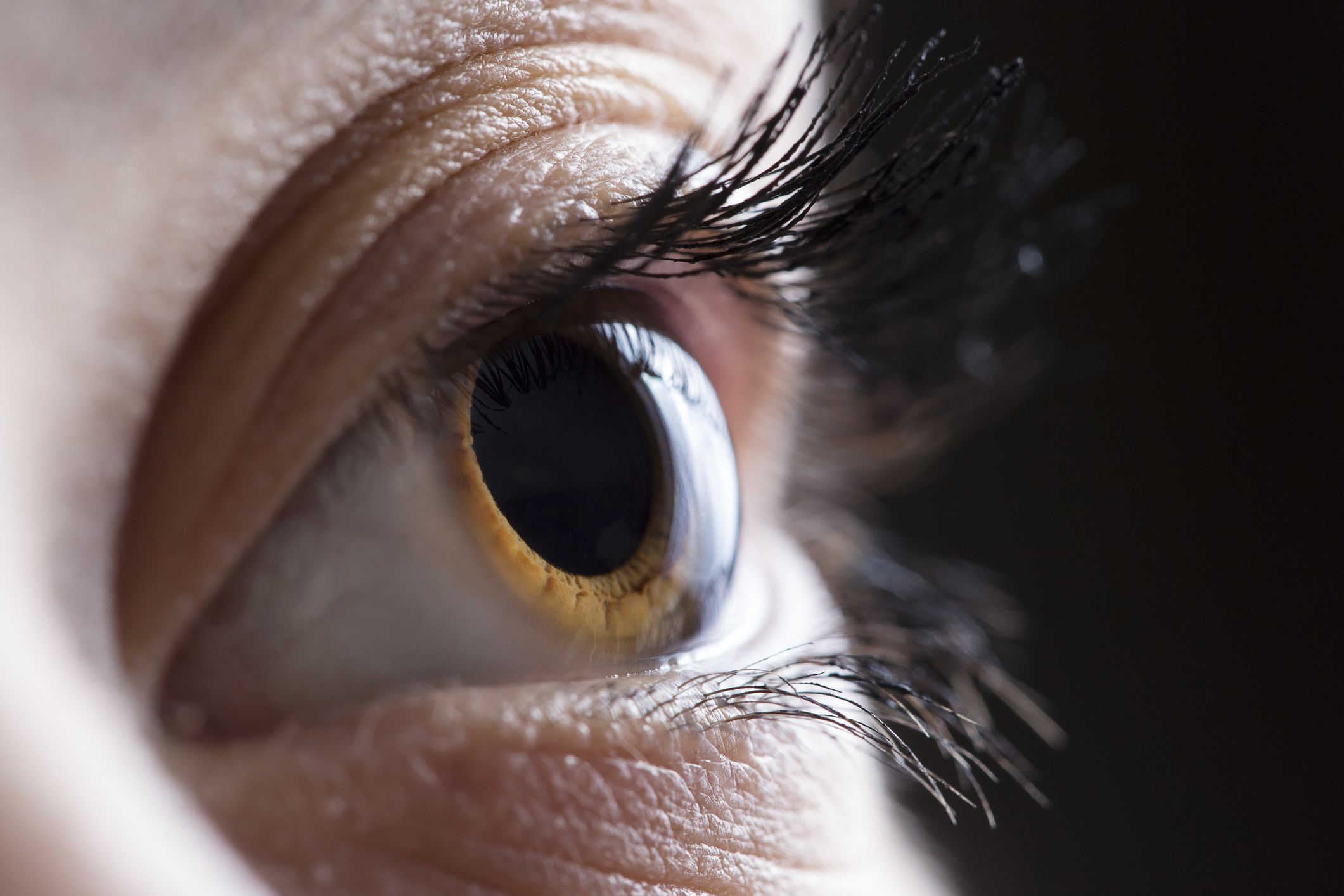 Brown eye – Steven J. Covici, MD, FACS