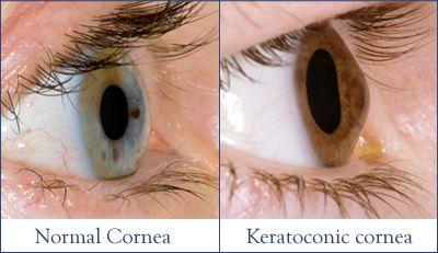 Normal and Keratoconic Cornea