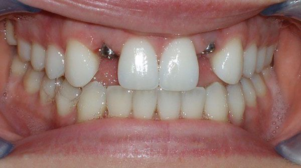 before dental implant treatment