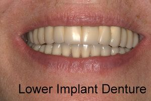 Woman smiling with lower implant denture installed