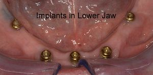 Implants in lower jaw