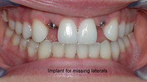 Dental implants for missing laterals