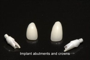 Dental implant abutments and crowns