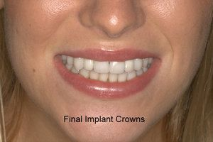 Final implant crowns