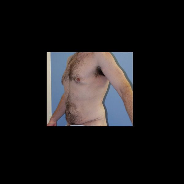 Before photo of a total body lift patient