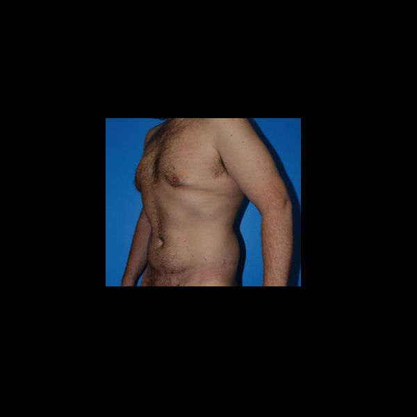 After photo of a total body lift patient