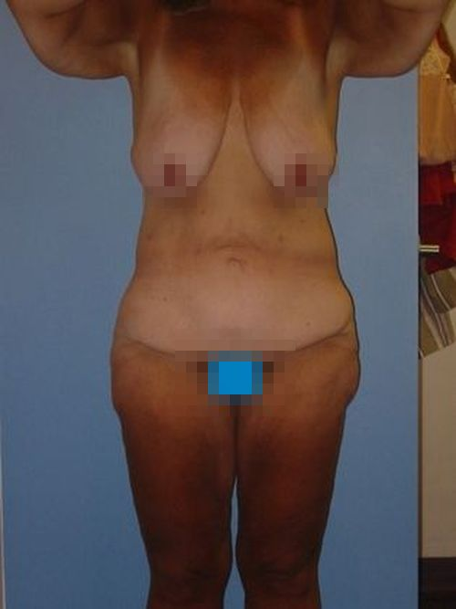 Before photo of body lift patient
