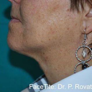 After FaceTite Treatment
