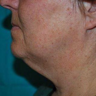 Before FaceTite Treatment