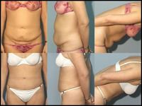 Case of woman with tummy tuck