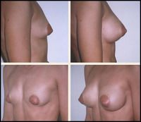 Case of woman with facelift