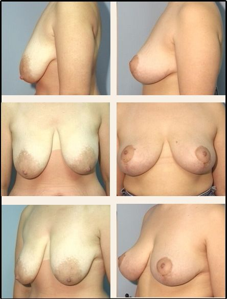 Breast Lift Case 3