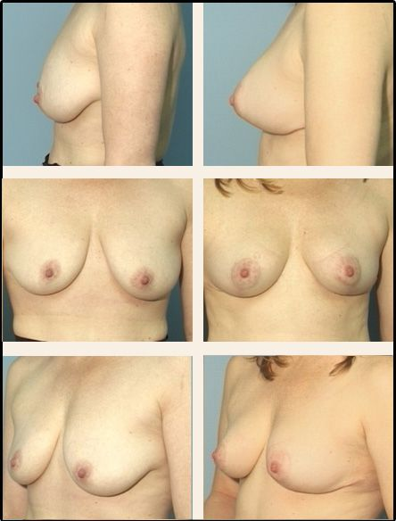 Breast Lift Case 4