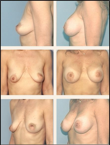 Breast Lift Case 5