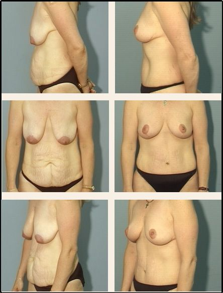 Breast Lift Case 6