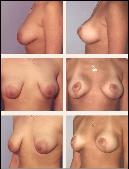 Breast Lift Case 7