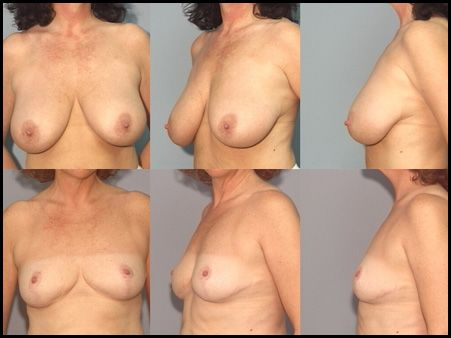 Breast Reduction Case 2