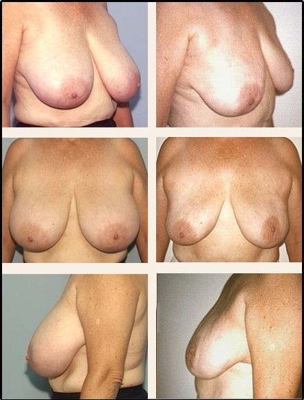 Breast Reduction Case 3