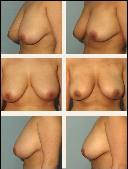 Breast Reduction Case 4