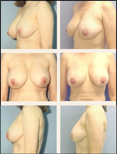 Breast Reduction Case 5