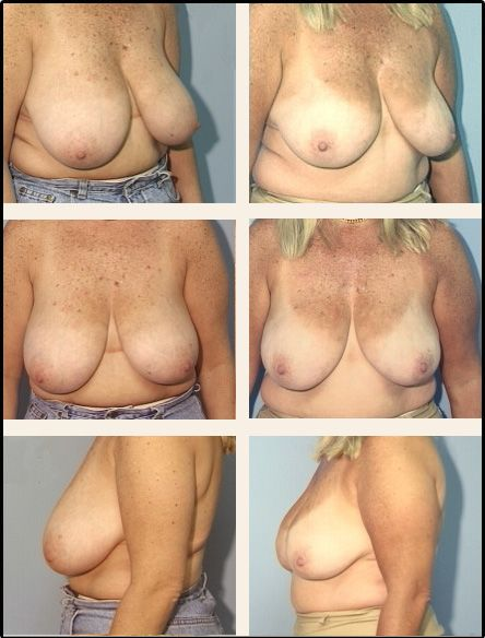 Breast Reduction Case 6