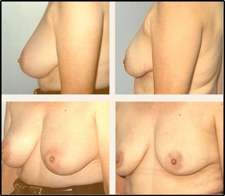 Breast Reduction Case 7