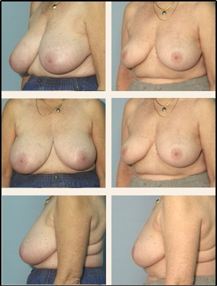 Breast Reduction Case 8