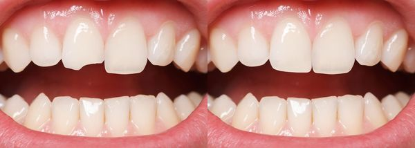 Before and after dental bonding photos