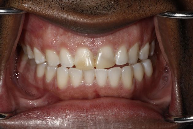 Teeth with dental stains