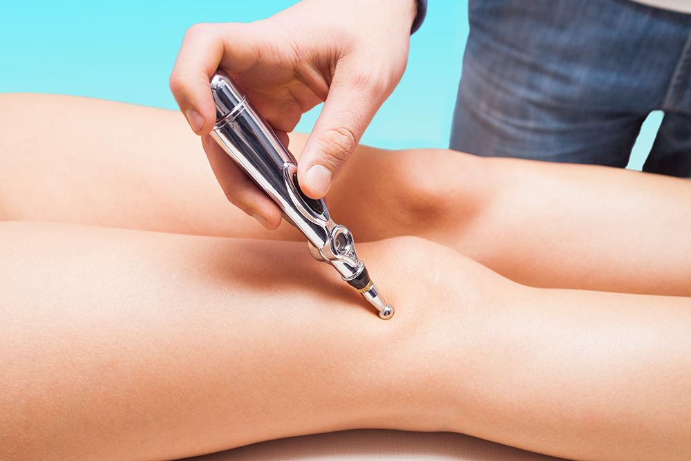 A woman gets laser acupuncture on her legs
