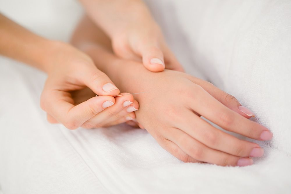 A woman's hand receives acupuncture