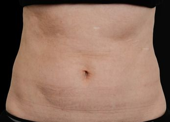 vanquish fat reduction image