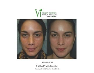 chemical peel pre and post photo