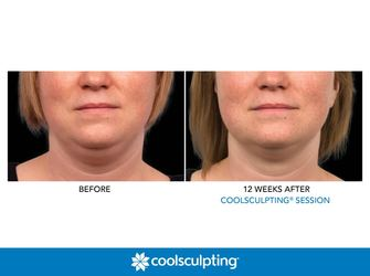 coolscupting double chin image