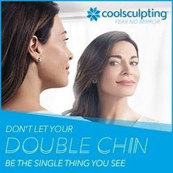 Coolsculpting double chin image