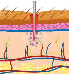 microneedling skin rejuvenation ct ri