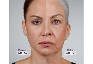 Skin Rejuvenation Dr Duke Mystic CT image
