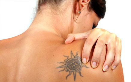 tattoo removal image