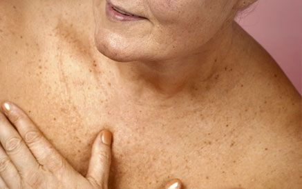 brown spots on the body