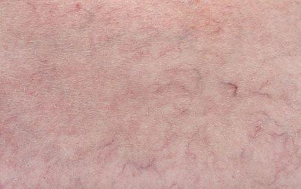 spider vein image