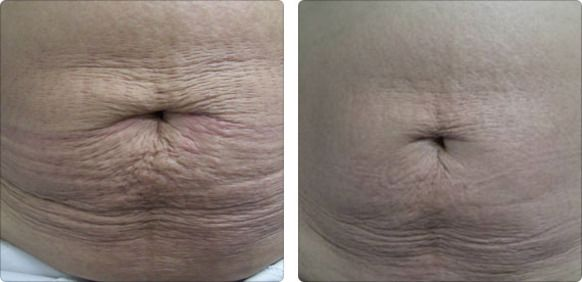 non surgical skin tightening  results