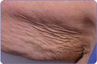 loose skin treatment