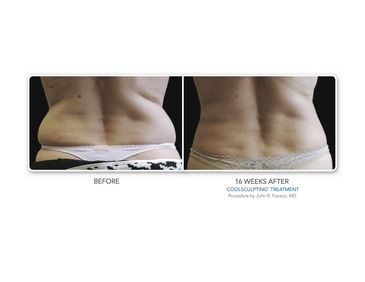 CoolSculpting Results in Connecticut