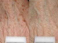 Laser Treatment of Brown Spots