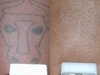 Laser Treatment of Tattoo Before and After