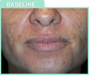 chemical peel image before and after