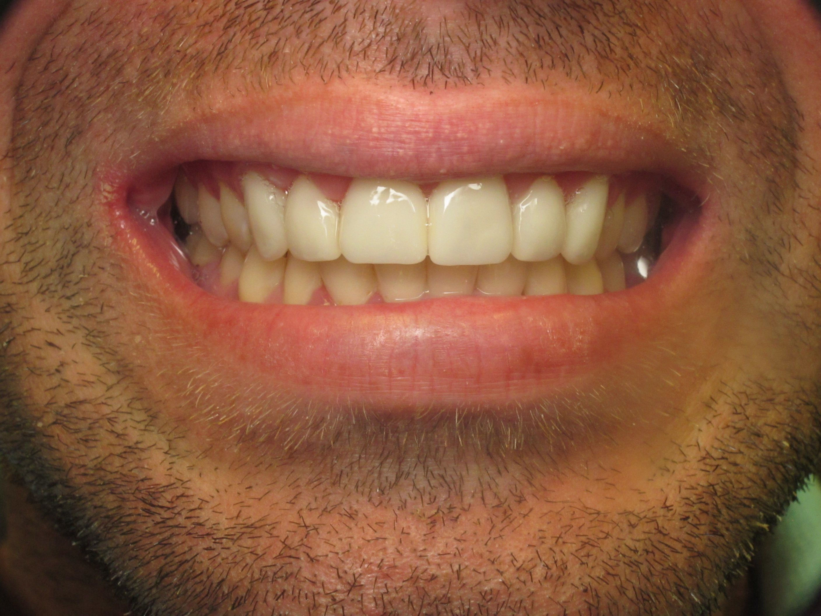 patient with white teeth