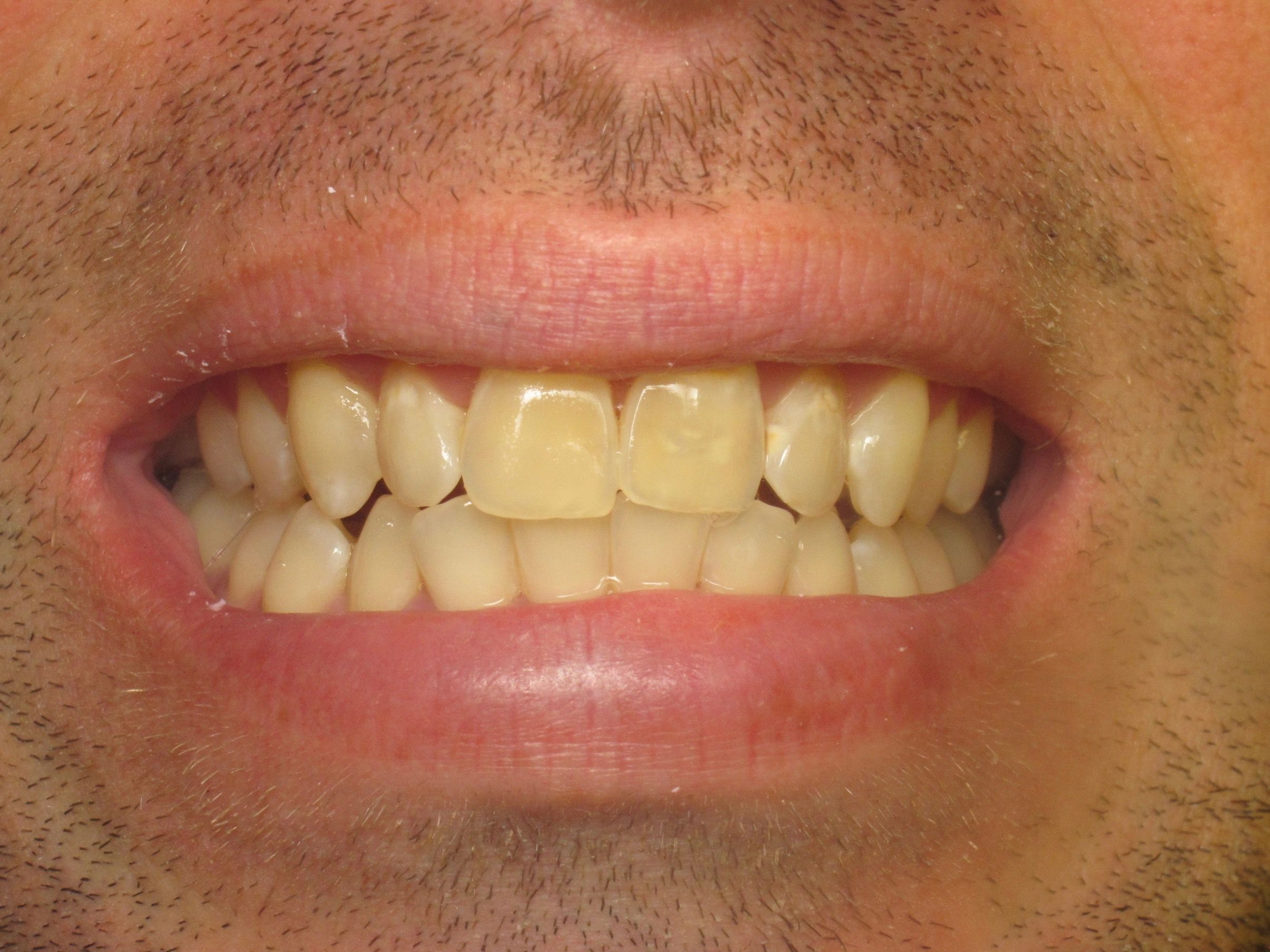 patient with yellow teeth